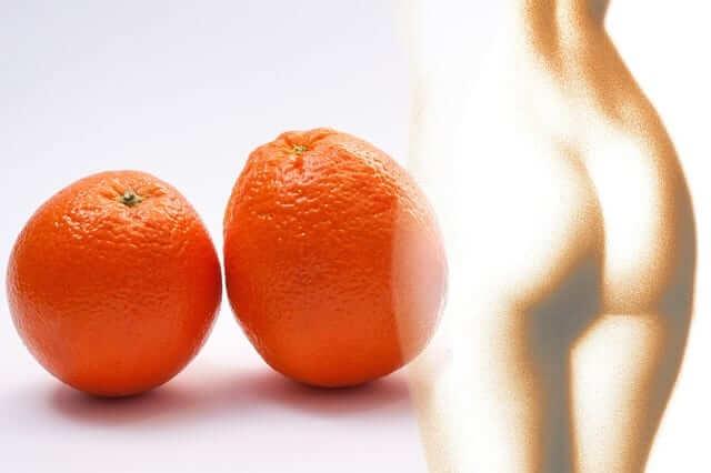remedios naturales para combatir la celulitis