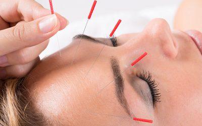 Rejuvenece con la acupuntura estética